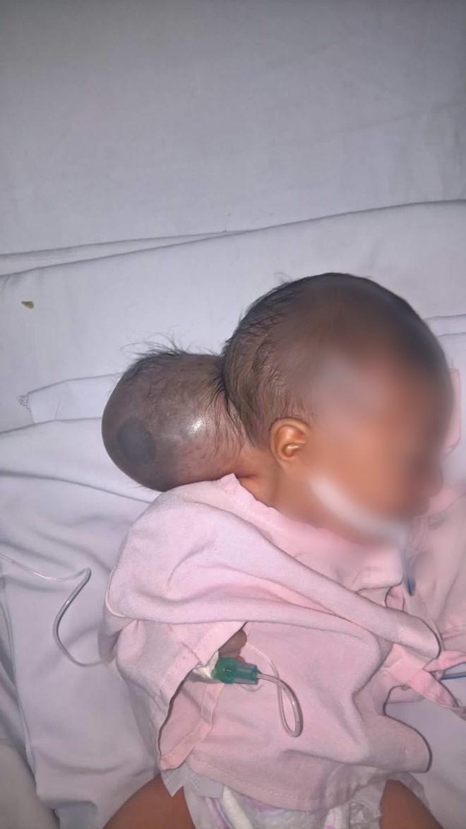 em bé bị bỏ rơi, em bé hai đầu