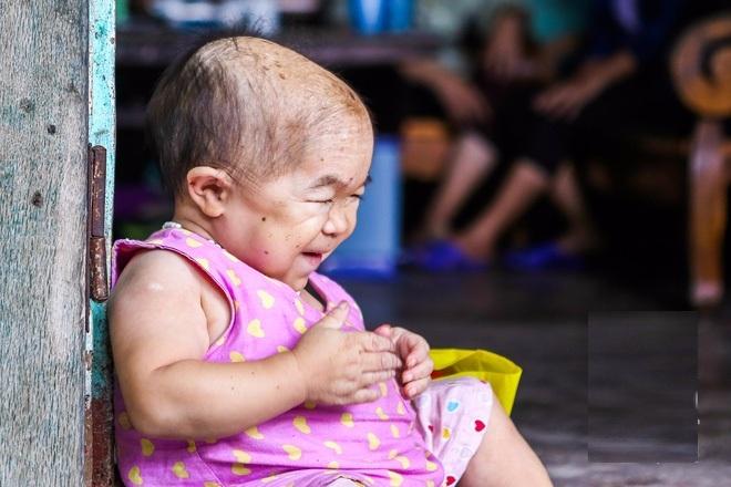 cô bé 27 sống trong hình hài của trẻ lên 2, cô bé não ủng thủy không lớn, não ung thủy, cô gái không lớn